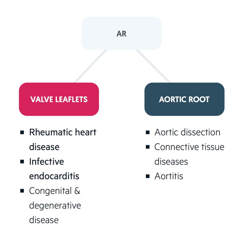 Aetiology of AR