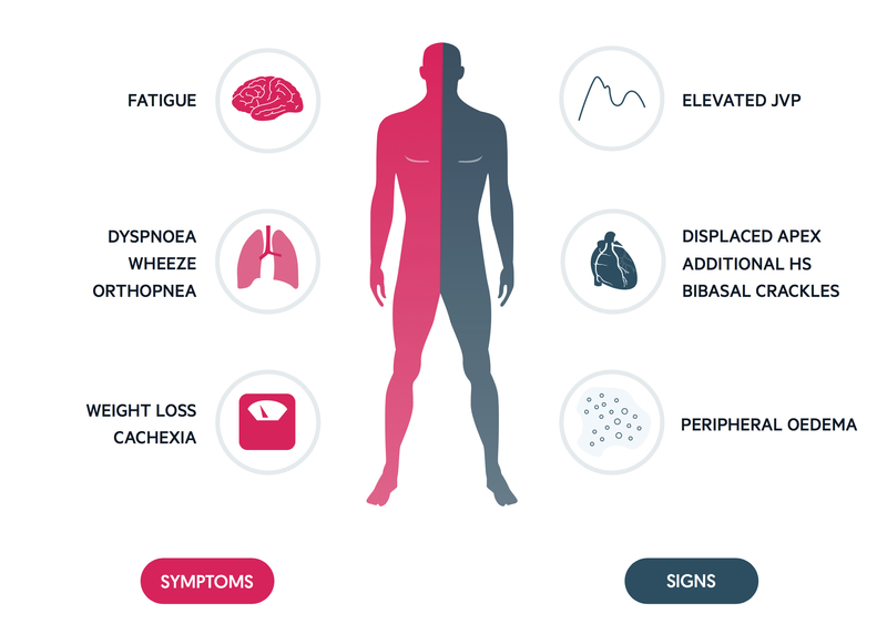 Clinical features of CHF