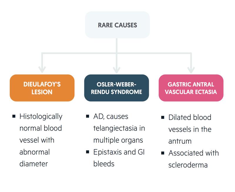Rare causes of UGIB