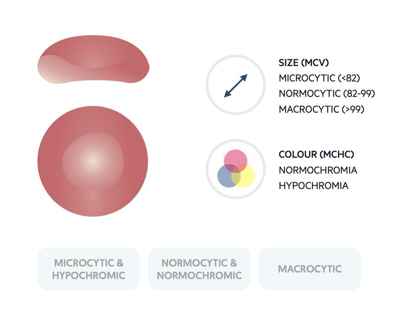 Morphological classification of anaemia