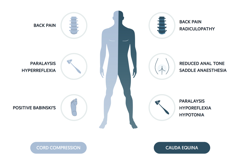 clinical features of cord compression