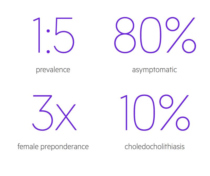 Cholelithiasis stats