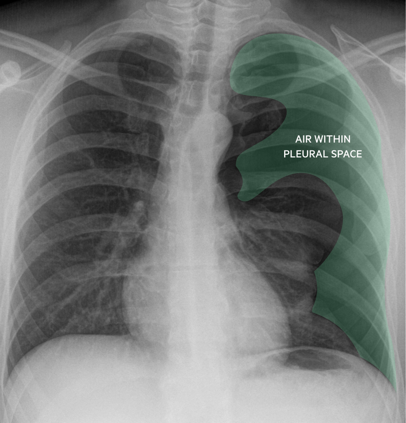 Chest radiograph demonstrating large left-sided pneumothorax
