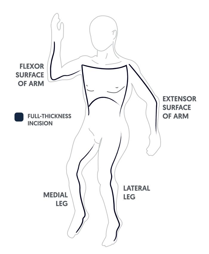 Escharotomy