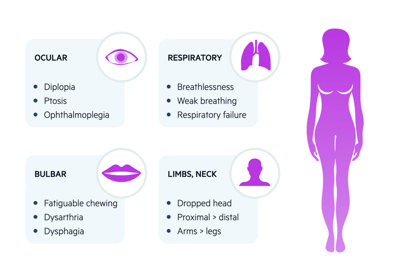 Clinical features of myasthenia gravis (MG)