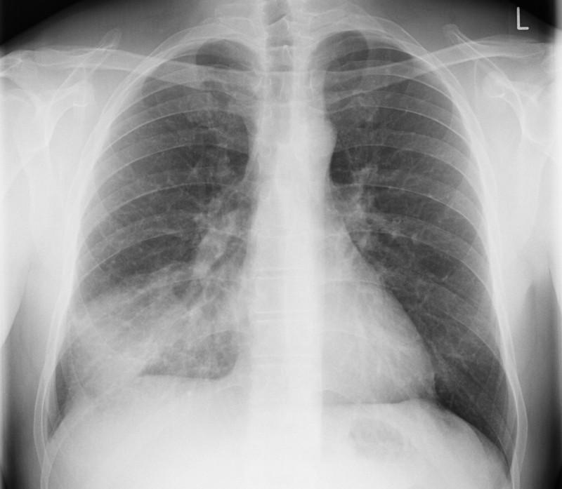 Pneumonia on CXR