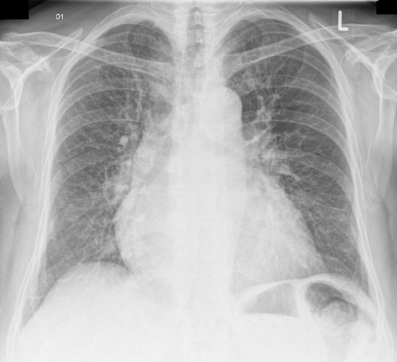 Heart failure on CXR
