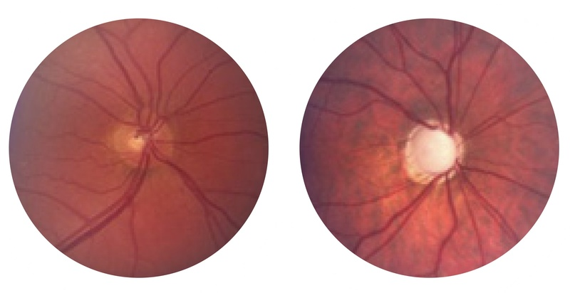Normal disc, left, Glaucoma right