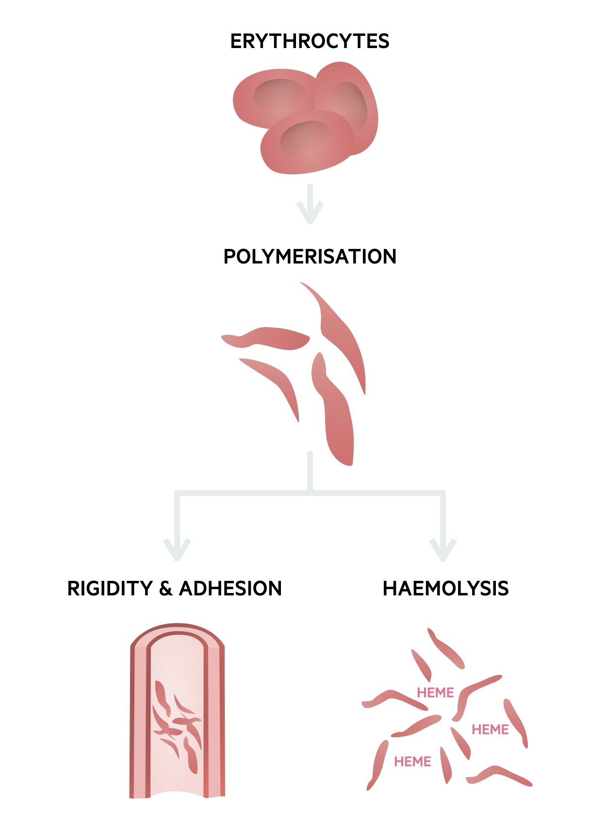 Sickle cell disease pathophysiology