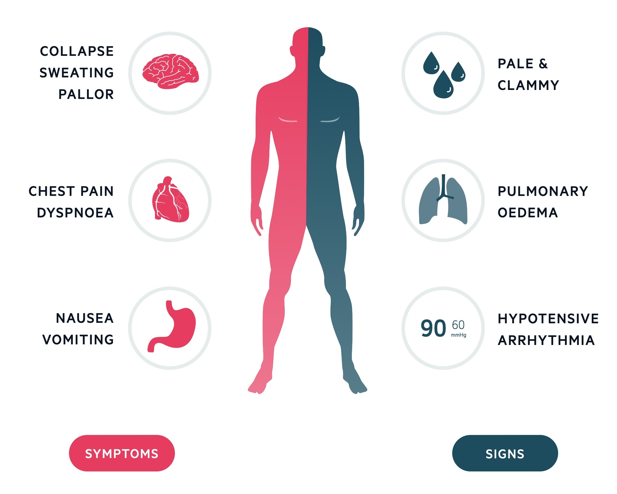 Clinical features of ACS