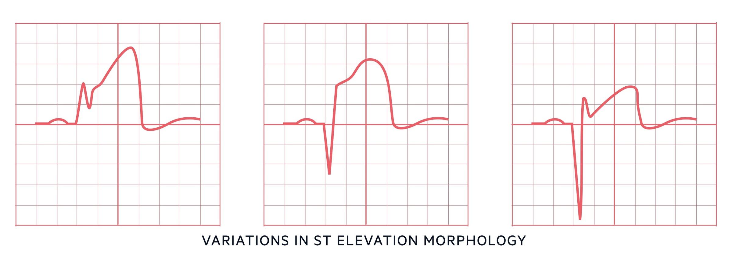 ST elevation morphology