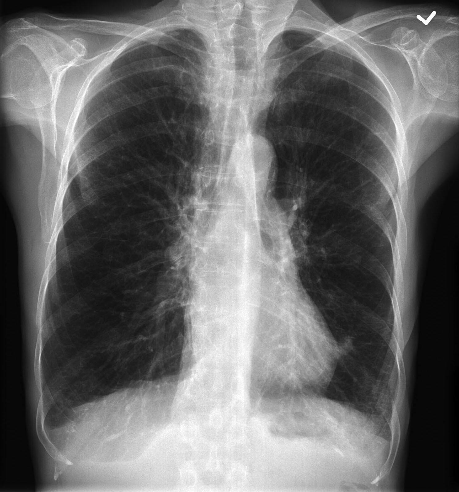 COPD on CXR