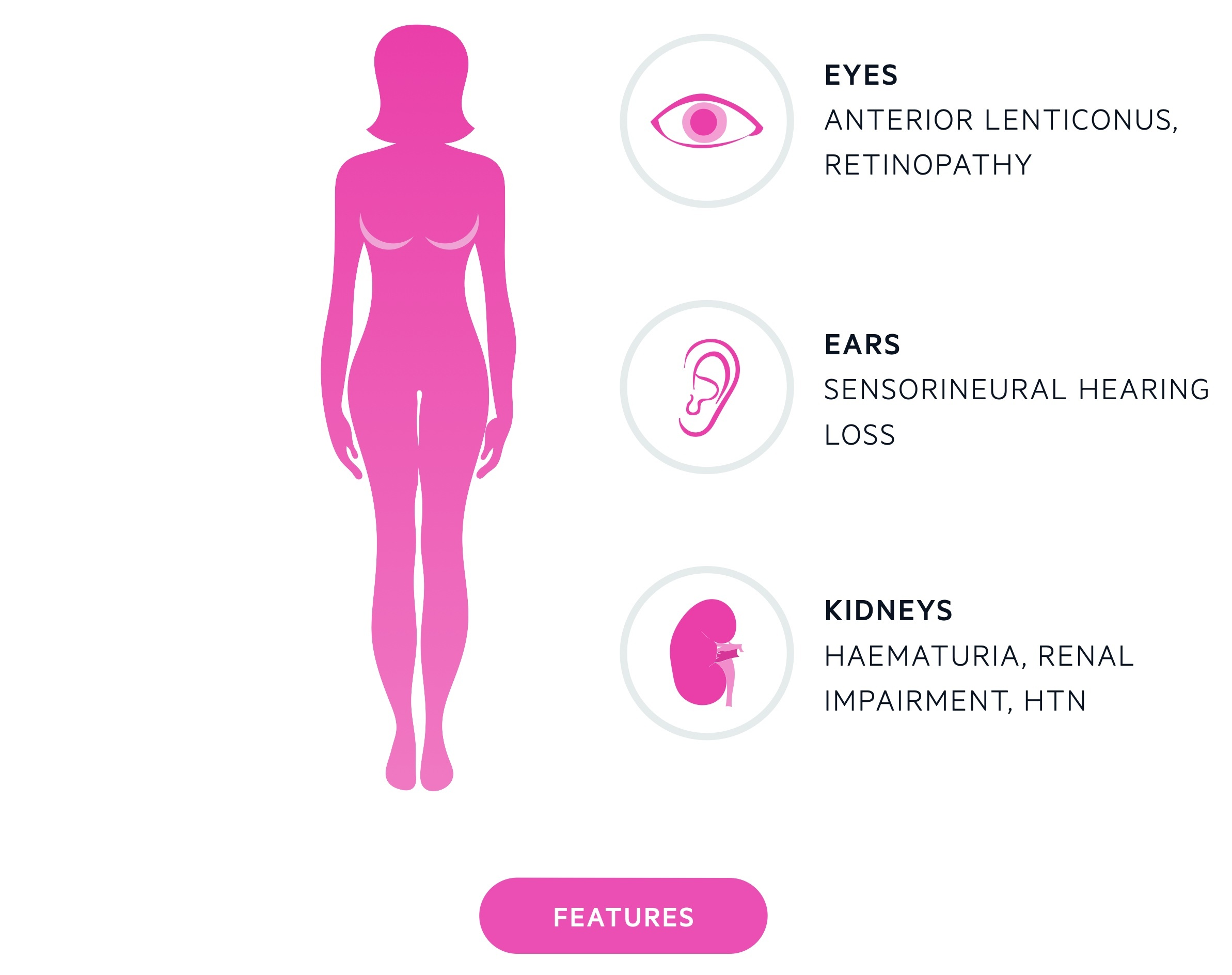 Features of Alport's syndrome