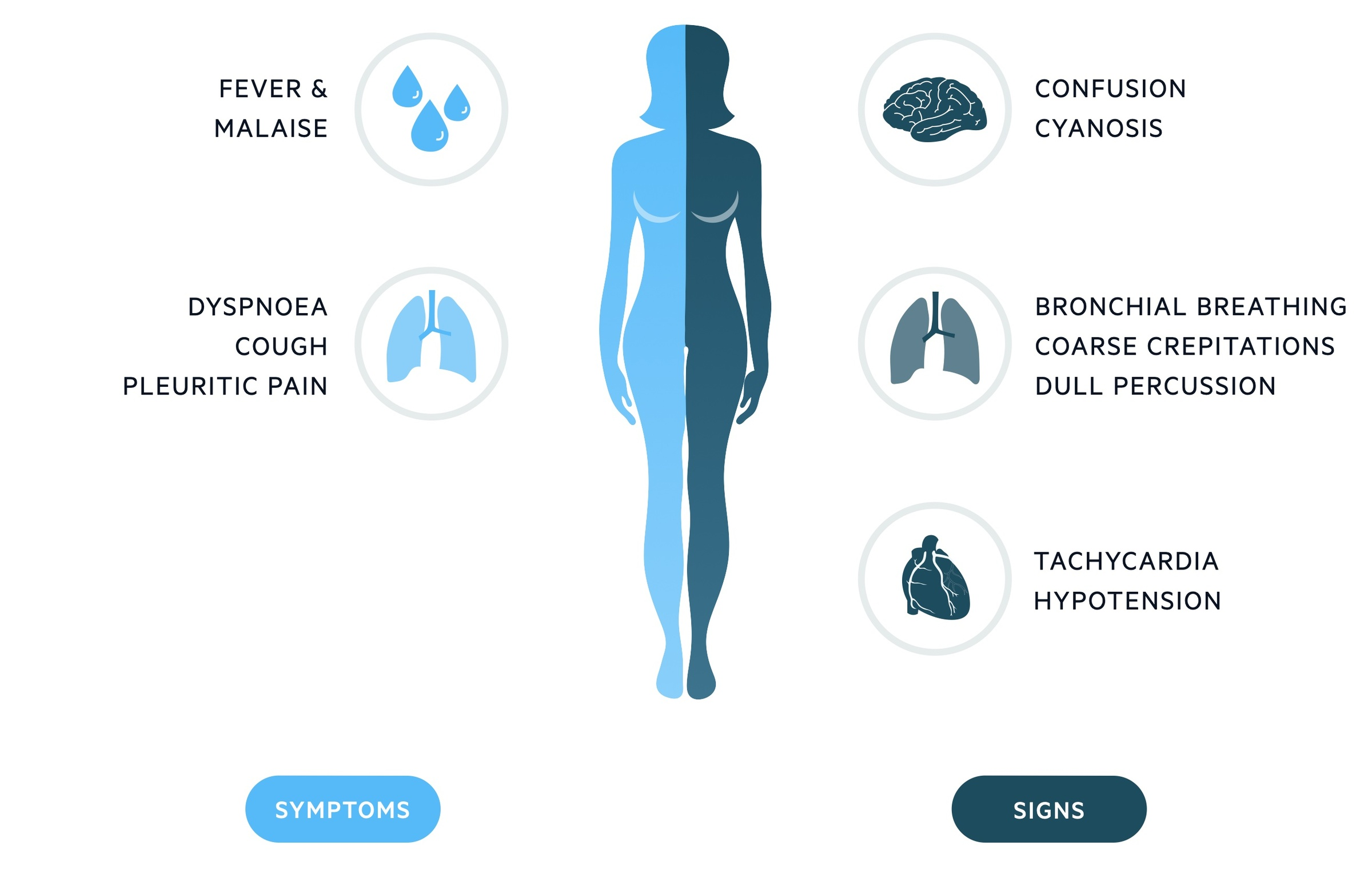 Clinical features of pneumonia