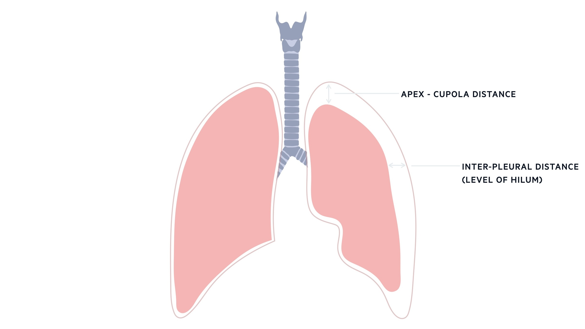 Apex-cupola distance and inter-pleural distance in pneumothorax