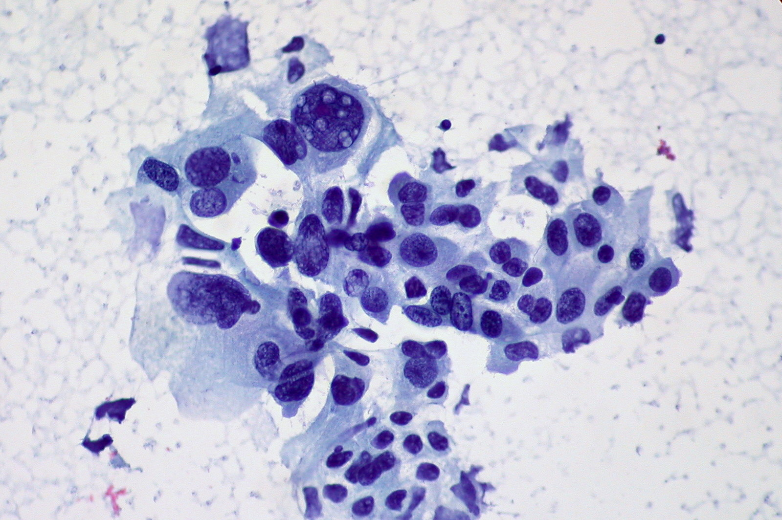 Squamous cell carcinoma on histology