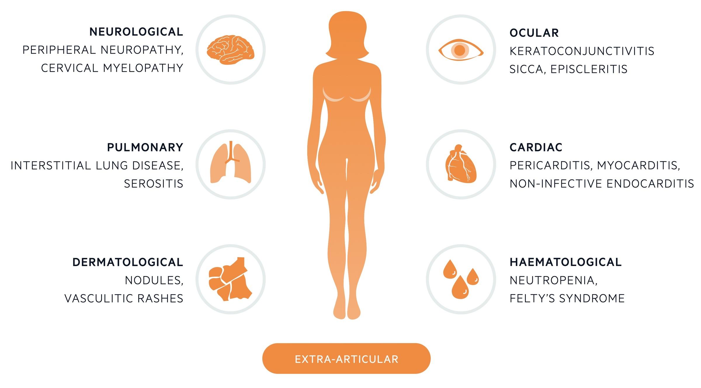 Extra-articular manifestations of rheumatoid arthritis