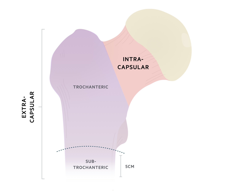 Intra- vs extra-capsular anatomy of hip