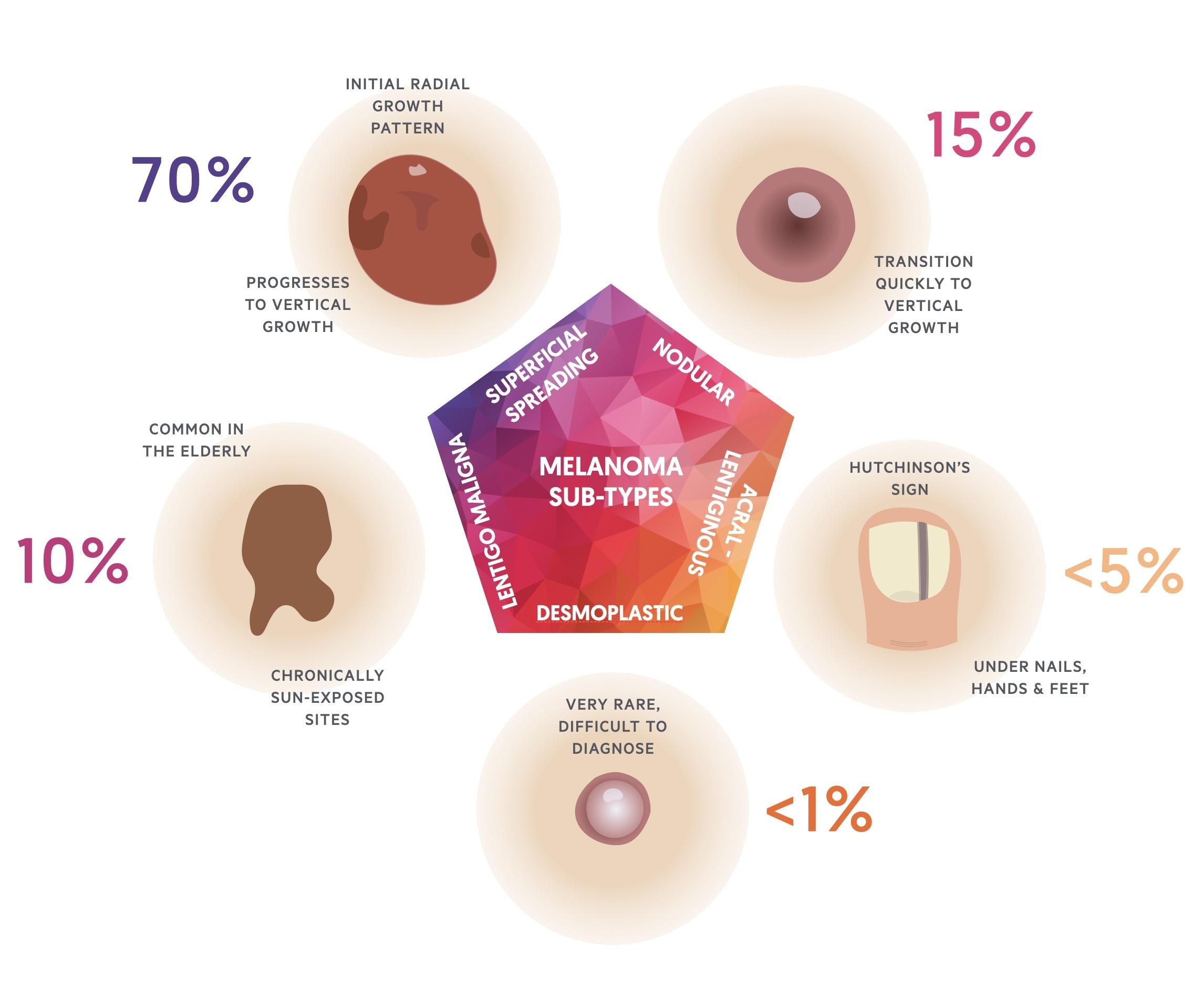 Melanoma sub-types