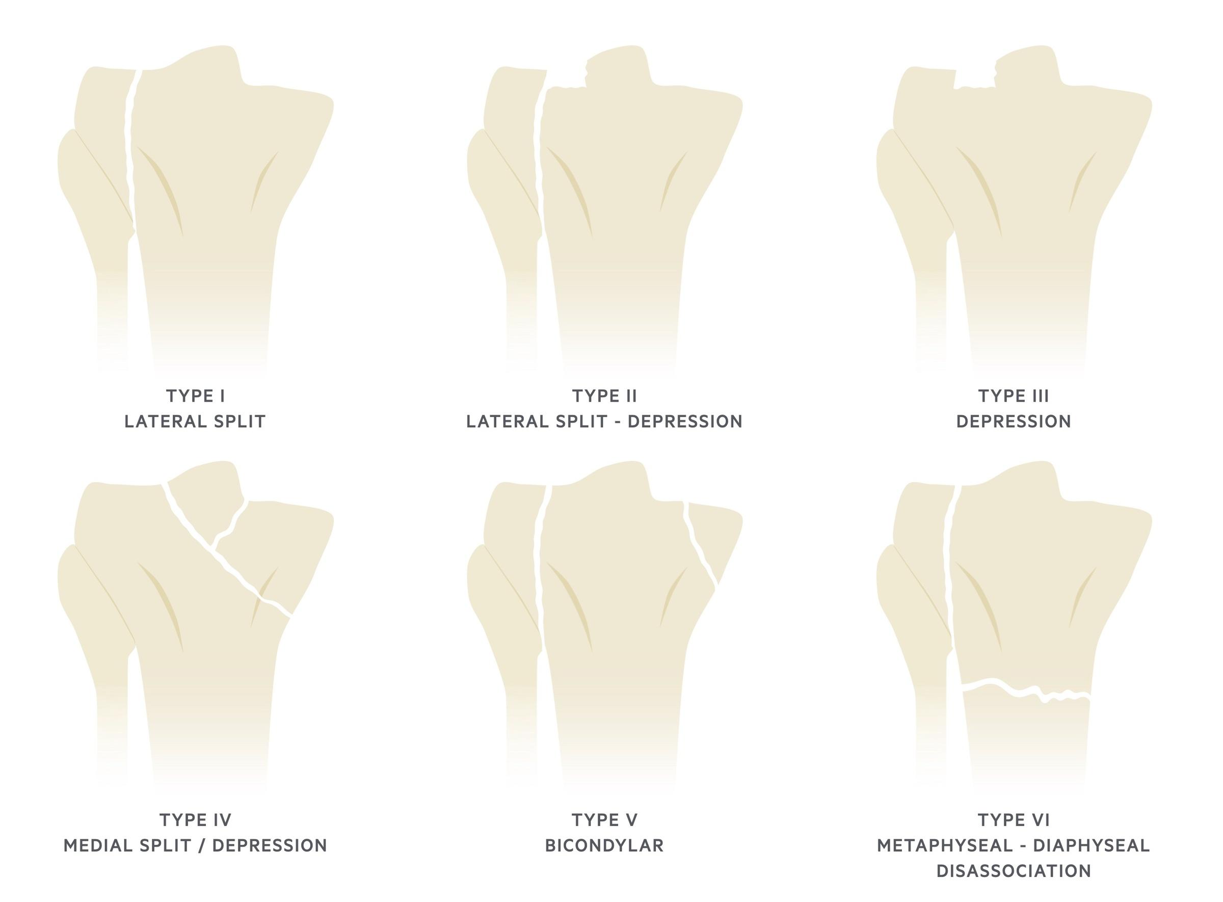 Schatzker classification