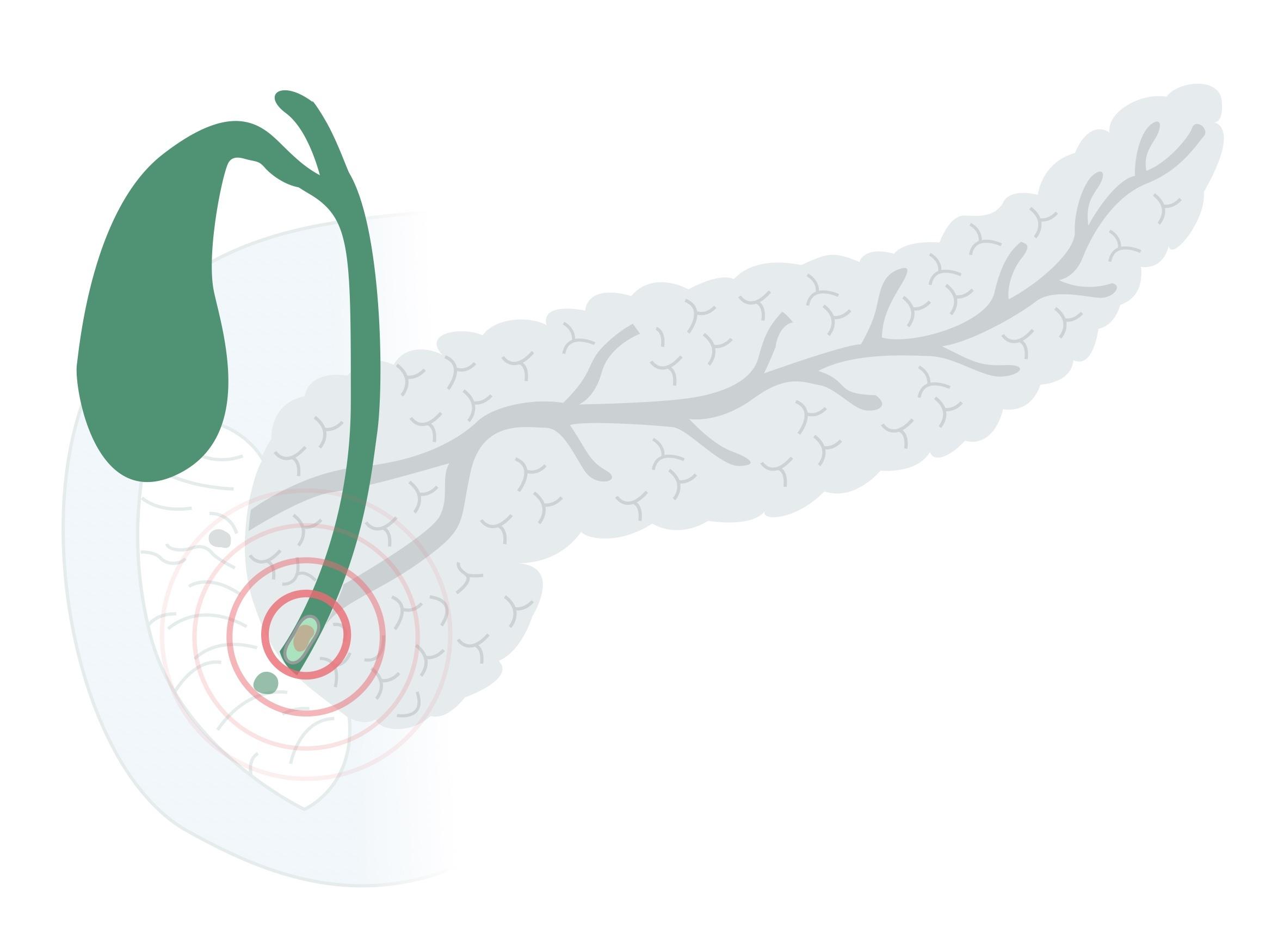 Gallstone in distal duct causing pancreatitis