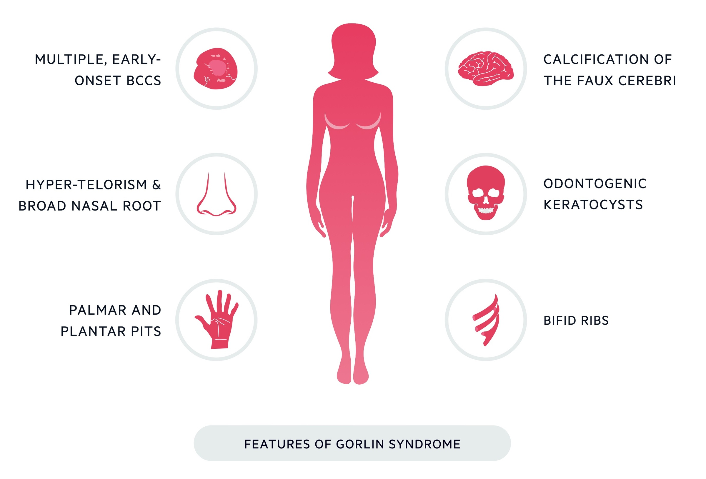 Features of Gorlin Syndrome