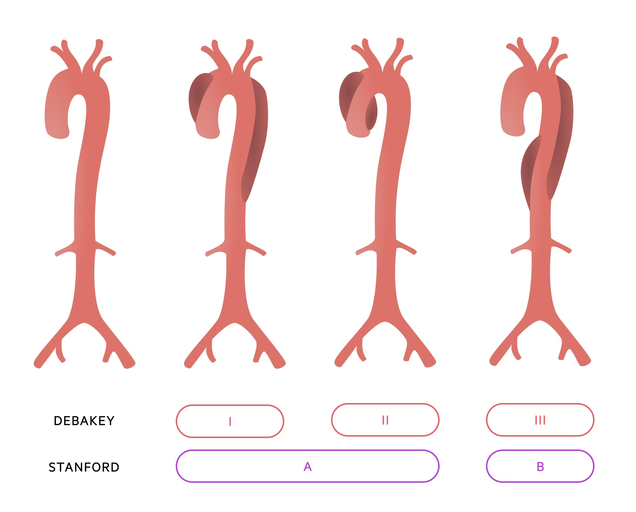 Classification of aortic dissection (Debakey and Stanford)