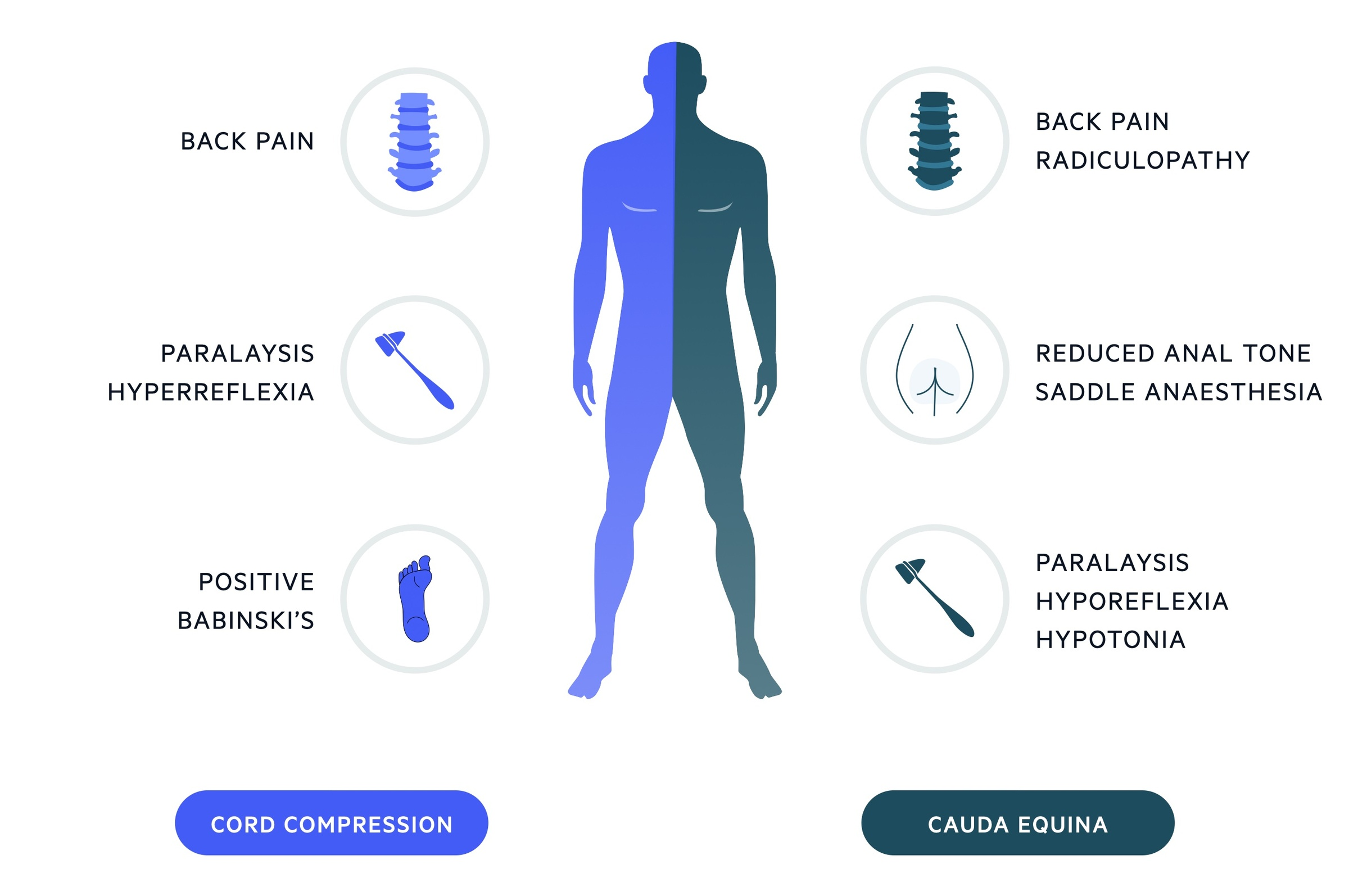 Clinical features of cord compression and cauda equina