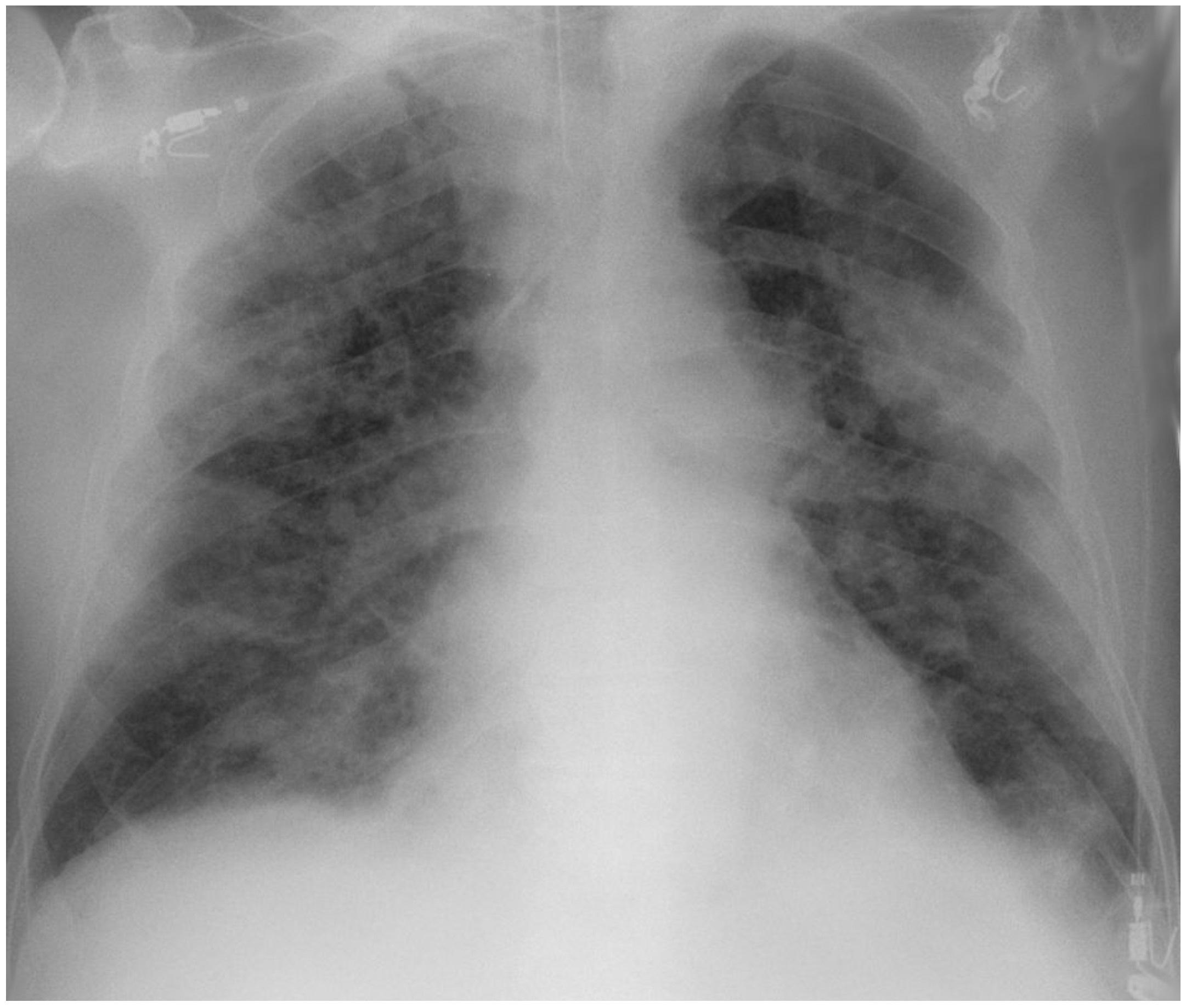 COVID x-ray
