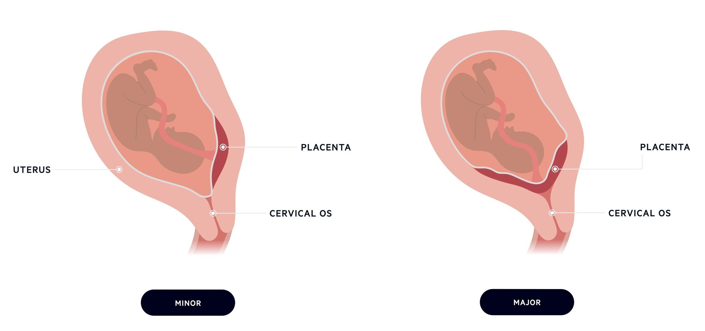 Types of placenta praevia