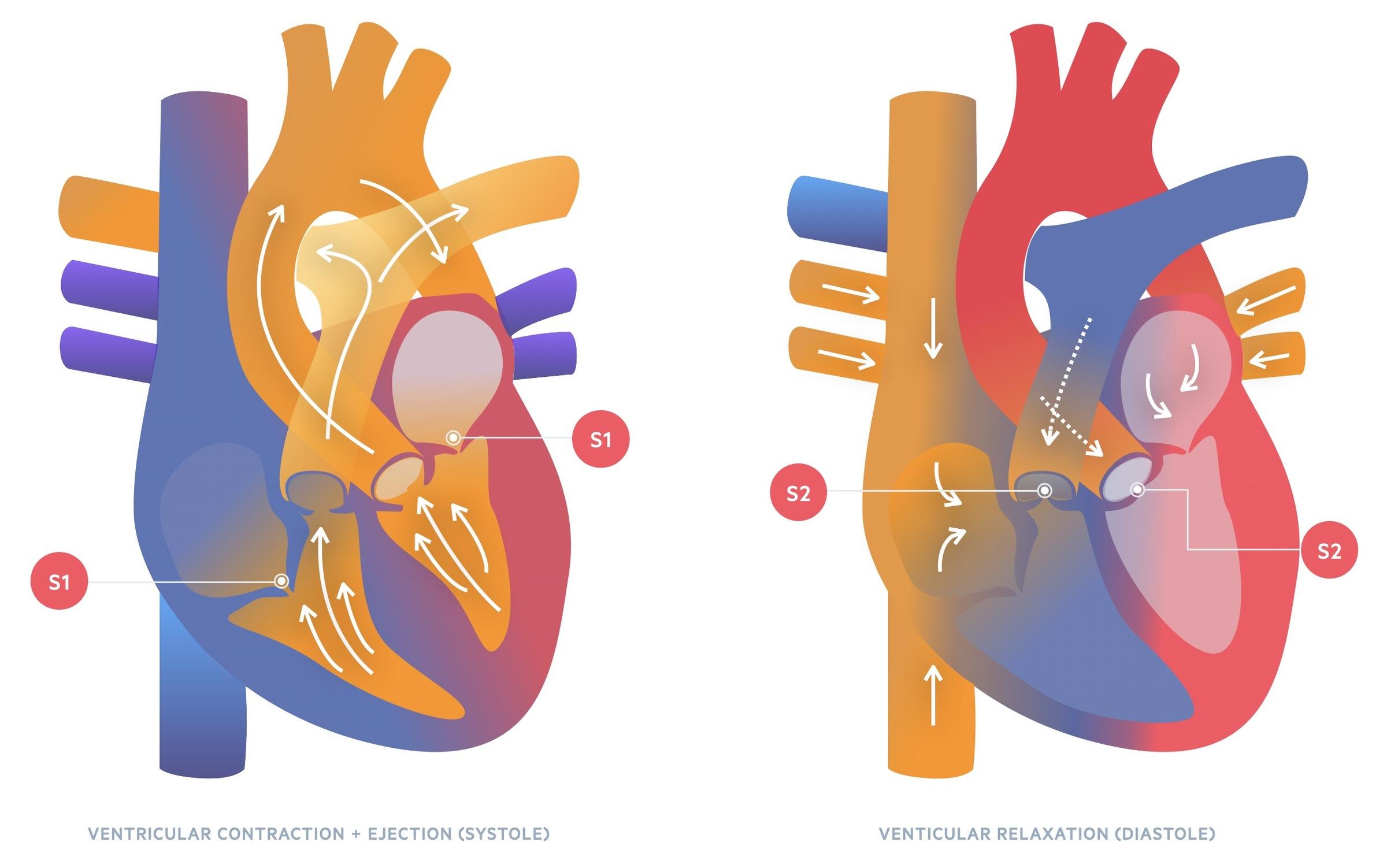 Abnormal splitting may be indicative of disease: Single S2/Reversed split: seen in aortic stenosis Fixed splitting: seen in atrial septal defects
