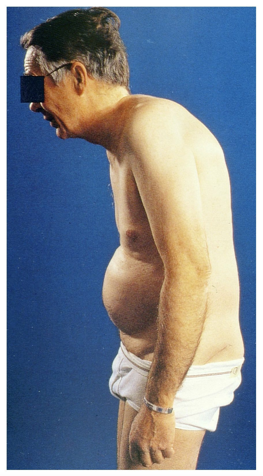 Question mark posture