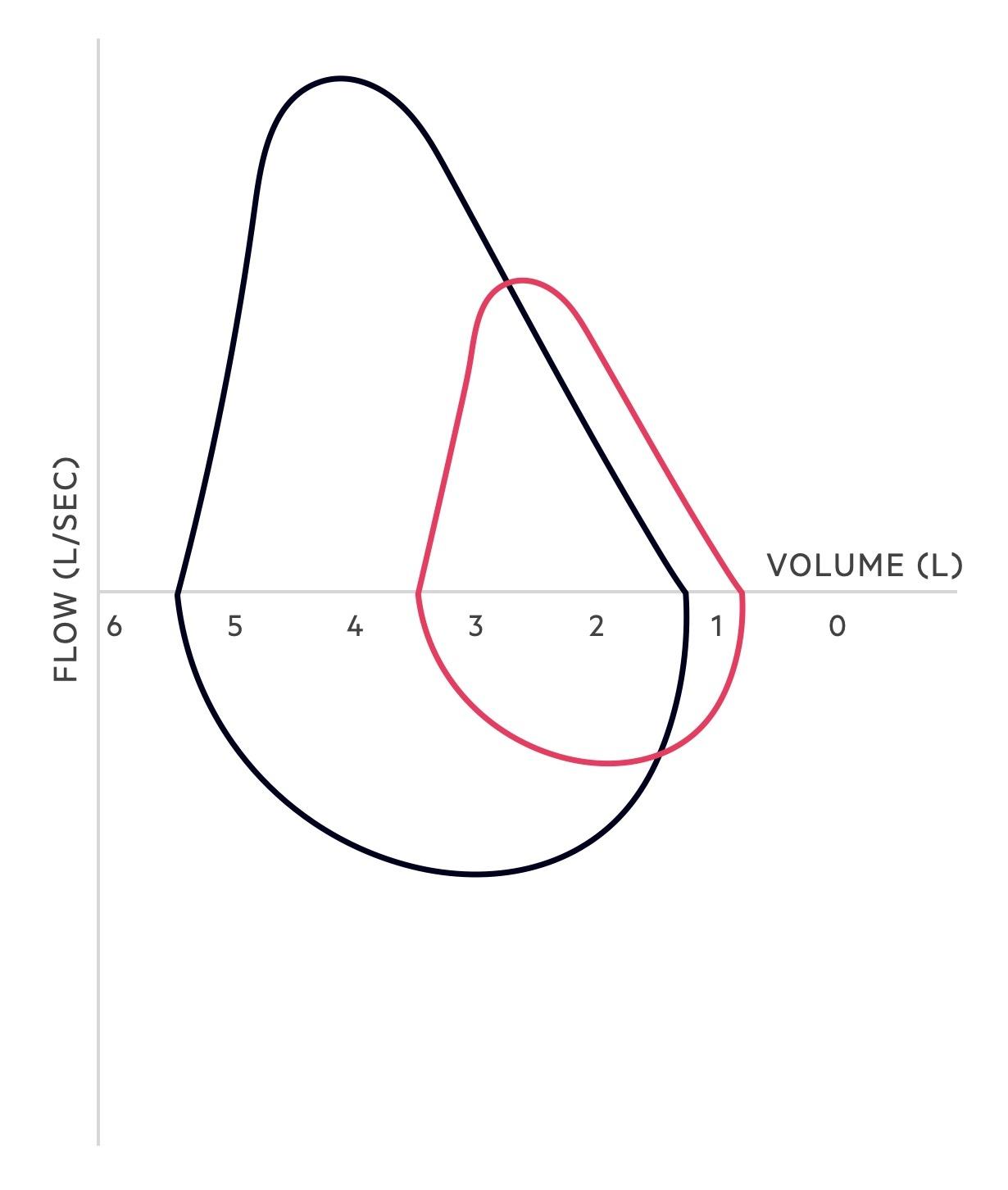 Obstructive flow-volume loop